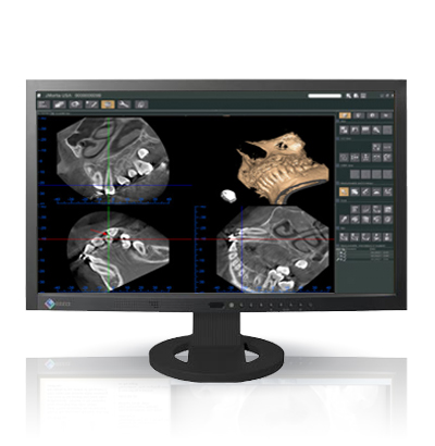 Monitor medico dental  EIZO